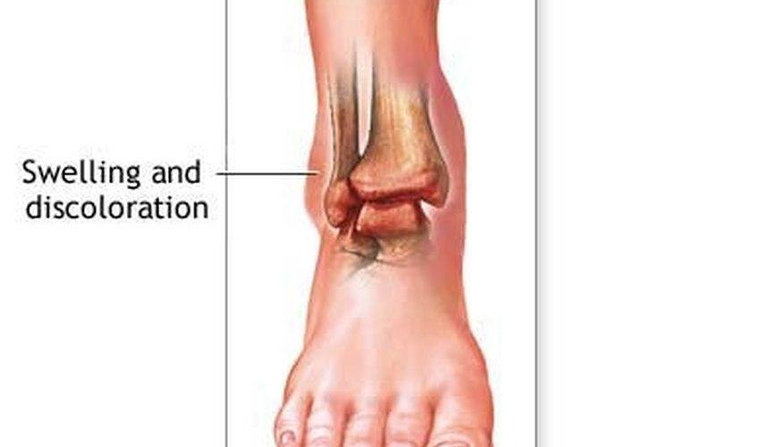 Anatomy of an ankle sprain