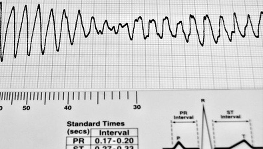 Lack of potassium causes heart irregularity.