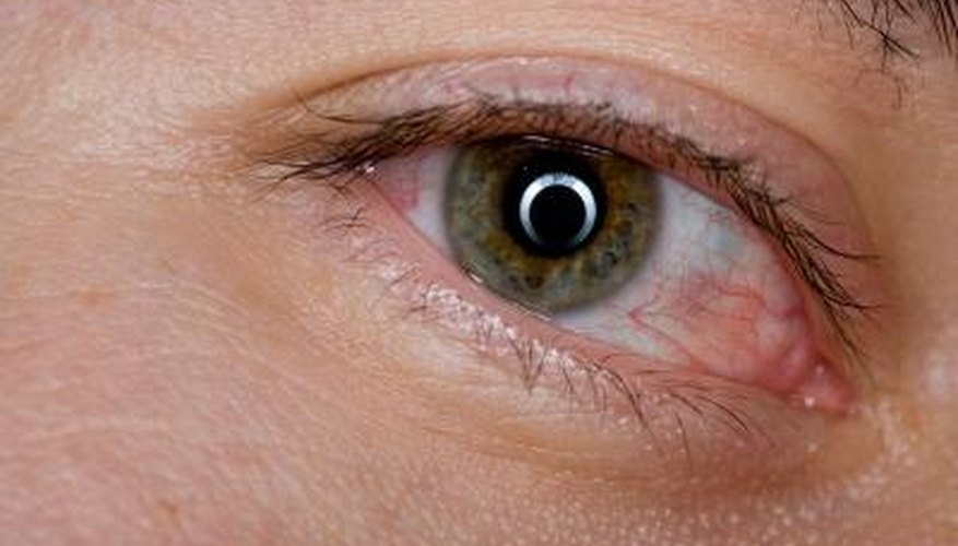 A stye is an infection that results in a tender red lump along the edge of an eyelid.